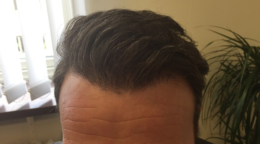 hårtransplantation efter operation
